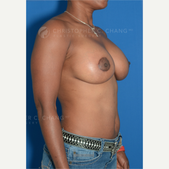 45-54 year old woman treated with Breast Lift with Implants after 3628962