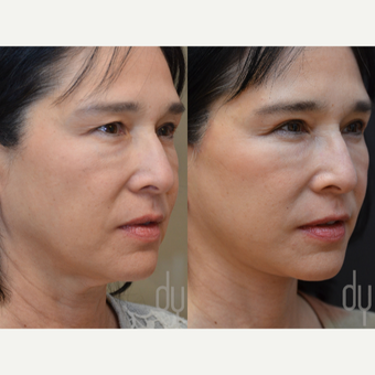 Facelift and Upper Blepharoplasty before 3100712