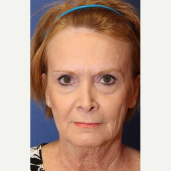 61 year old woman with a complex facelift with endoscopic brow lift and lower lid blepharhoplasty before 2726970
