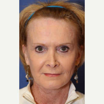 61 year old woman with a complex facelift with endoscopic brow lift and lower lid blepharhoplasty after 2726970