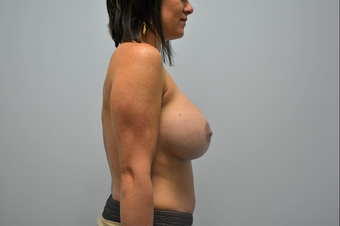 Breast Augmentation with Sientra Implants on 29 year old mother of 3 2389533