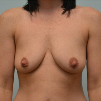 Breast Augmentation with Sientra Implants on 29 year old mother of 3 before 2389533