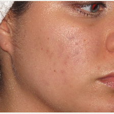 18-24 year old woman treated with Pixel Laser before 2714166