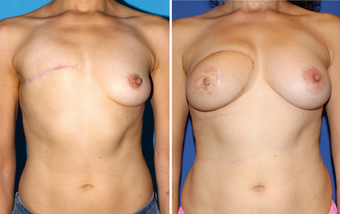 Breast Reconstruction before 330272