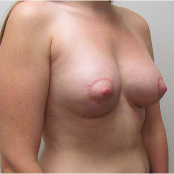 25-34 year old woman treated with Breast Lift with Implants after 3025265