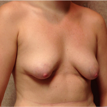 25-34 year old woman treated with Breast Lift with Implants before 3025265