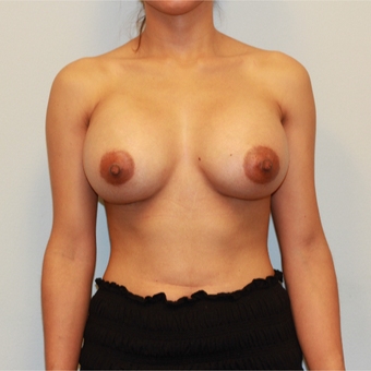 25-34 year old woman treated with Breast Implants after 3026789