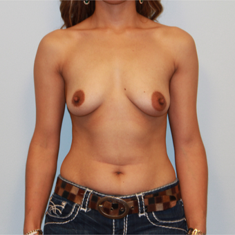 25-34 year old woman treated with Breast Implants before 3026789