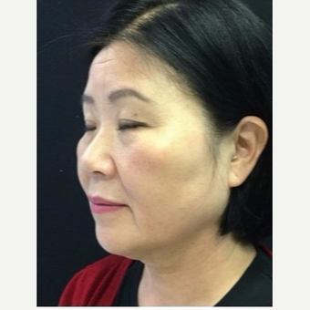 55-64 year old woman treated with Ultherapy after 3179940