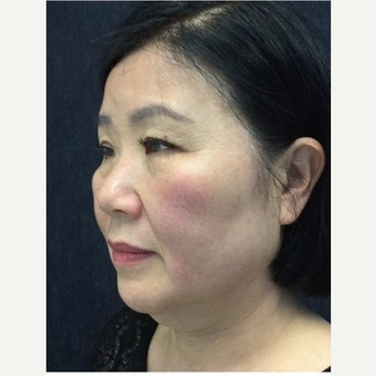 55-64 year old woman treated with Ultherapy before 3179940