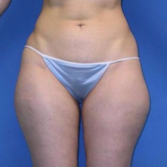 25-34 year old woman treated with Liposuction before 3496823