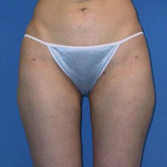 25-34 year old woman treated with Liposuction after 3496823