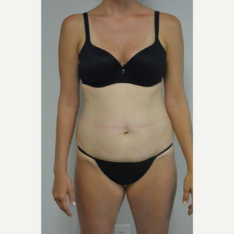 35-44 year old woman treated with Tummy Tuck and liposuction of her flanks and lower back before 3458995