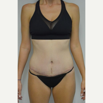 35-44 year old woman treated with Tummy Tuck and liposuction of her flanks and lower back after 3458995