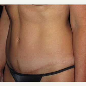 45 year old woman treated with Tummy Tuck before 3252387