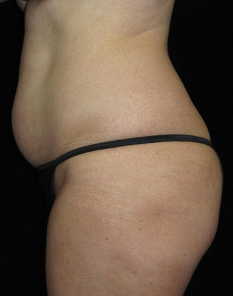 45 year old woman treated with Tummy Tuck 3252387