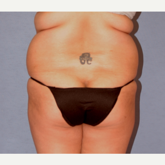 25-34 year old woman treated with Liposculpture before 3108869