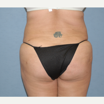 25-34 year old woman treated with Liposculpture after 3108869