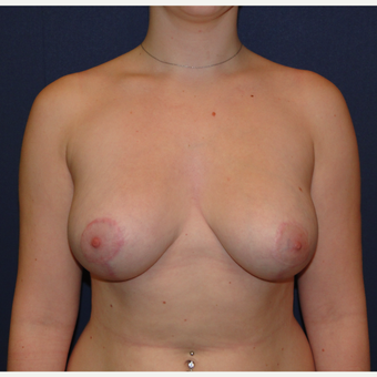 18-24 year old woman treated with Breast Reduction after 3239945