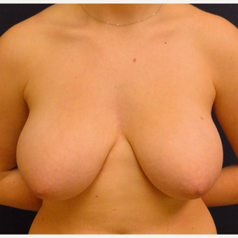 18-24 year old woman treated with Breast Reduction before 3239945