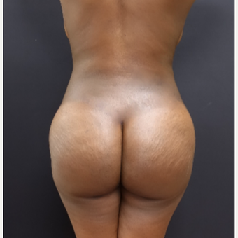 25-34 year old woman treated with Brazilian Butt Lift after 3363798