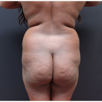 25-34 year old woman treated with Brazilian Butt Lift before 3363798