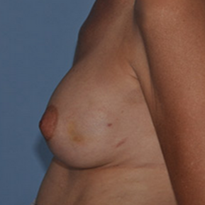 Breast Reconstruction before 1605032
