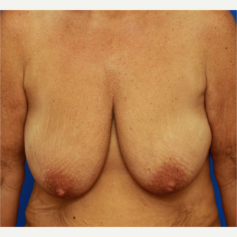 48- year old woman treated with Breast Lift before 3108344