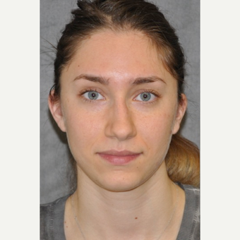 25-34 year old woman treated with Rhinoplasty before 3566003