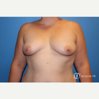 35-44 year old woman treated with Breast Lift with Implants before 3304904