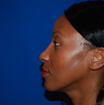 African American Rhinoplasty after 1365276