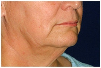 Lower Facial Rejuvenation before 1010959