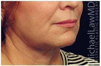 Lower Facial Rejuvenation after 1010959