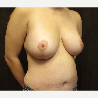 25-34 year old woman treated with Breast Lift after 3027426
