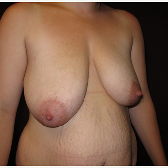 25-34 year old woman treated with Breast Lift before 3027426
