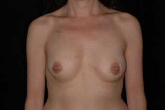 47 Year Old Female with Breast Reconstruction After Cancer