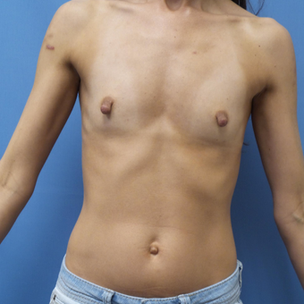 35-44 year old woman treated with Breast Augmentation before 3005029