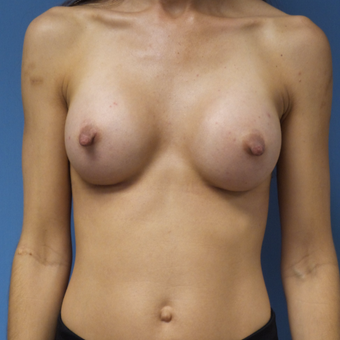35-44 year old woman treated with Breast Augmentation after 3005029
