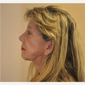 65-74 year old woman treated with Facelift before 3103079