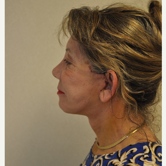 65-74 year old woman treated with Facelift after 3103079