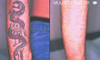 Color Tattoo Removal on Forearm before 1437540