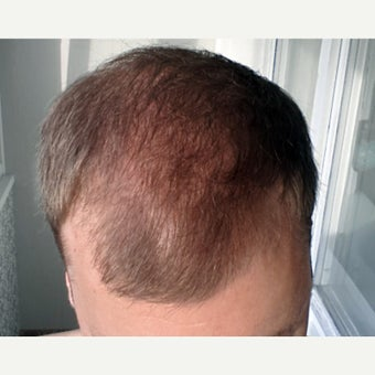 25-34 year old man treated with FUE Hair Transplant before 2051474