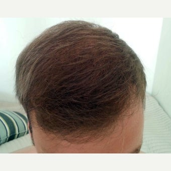 25-34 year old man treated with FUE Hair Transplant after 2051474