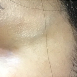 50  year old woman treated with ND:Yag laser for large veins near the eye