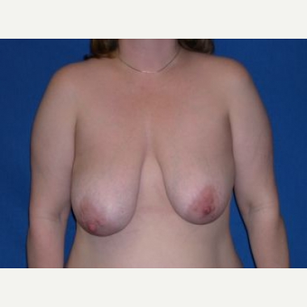 45-54 year old woman treated with Breast Lift before 3009138