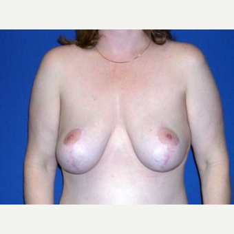 45-54 year old woman treated with Breast Lift after 3009138