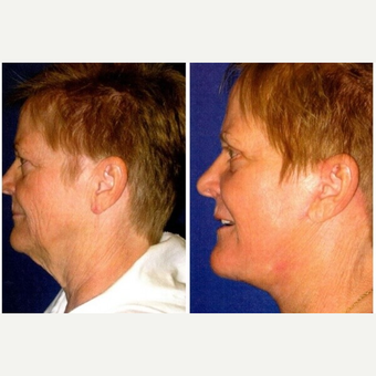 45-54 year old woman treated with Laser Resurfacing