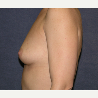 35 - 44 year old woman treated with Breast Augmentation before 3455615