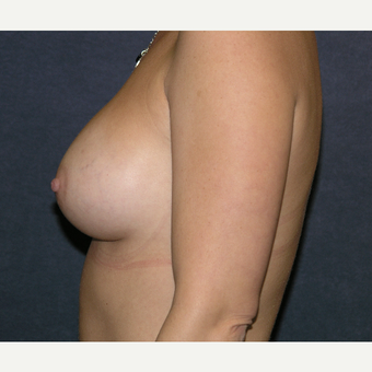 35 - 44 year old woman treated with Breast Augmentation after 3455615