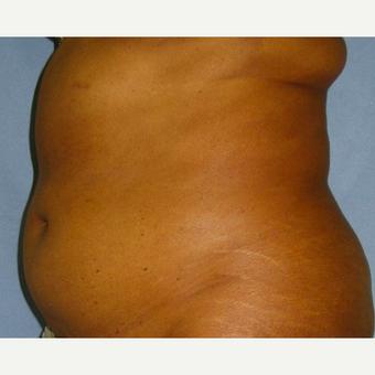 hogyan lehet megszervezni a fogyás kihívását kozmetikai eljárások a fogyás érdekében